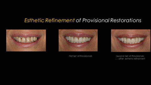 Fixed Prosthodontics