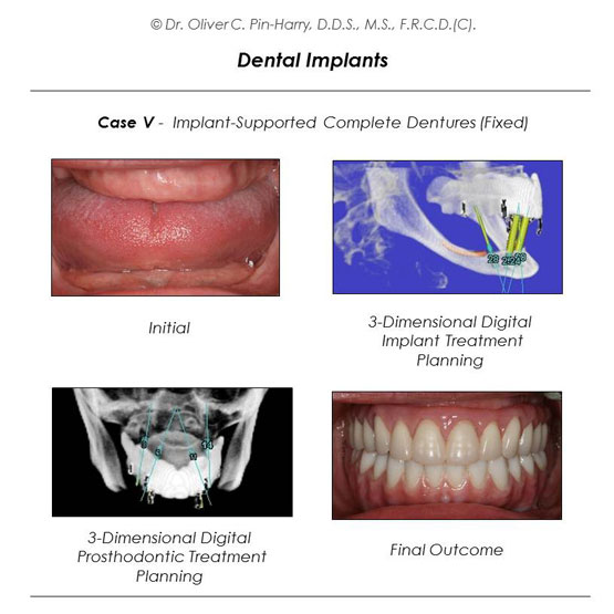 Full Mouth Implant and Dentures