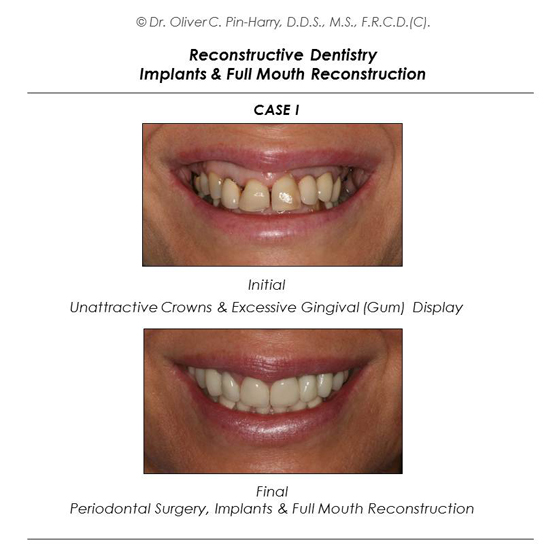 Full Mouth Reconstruction + Esthetic Cosmetic