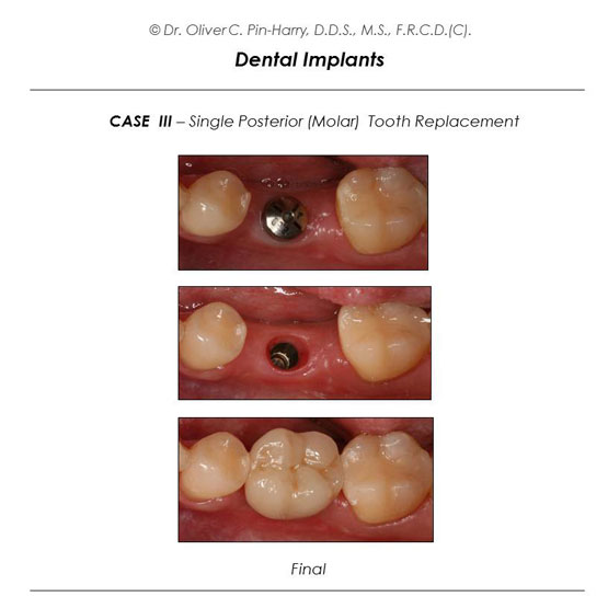 Molar Implant