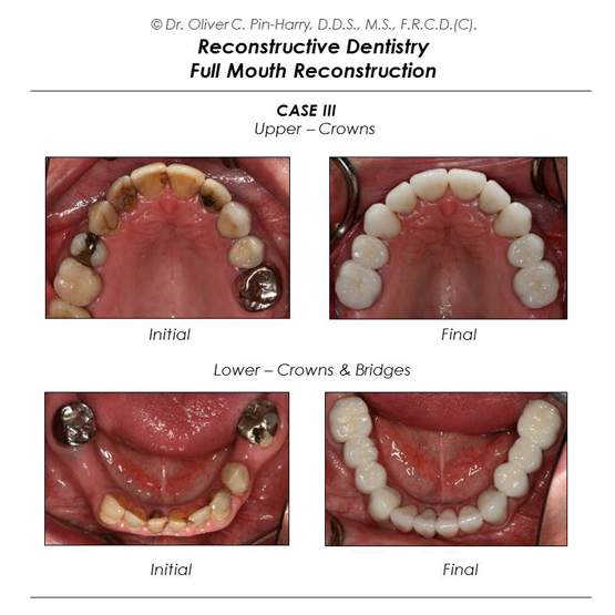 Porcelain Ceramic Full Mouth Reconstruction Crowns