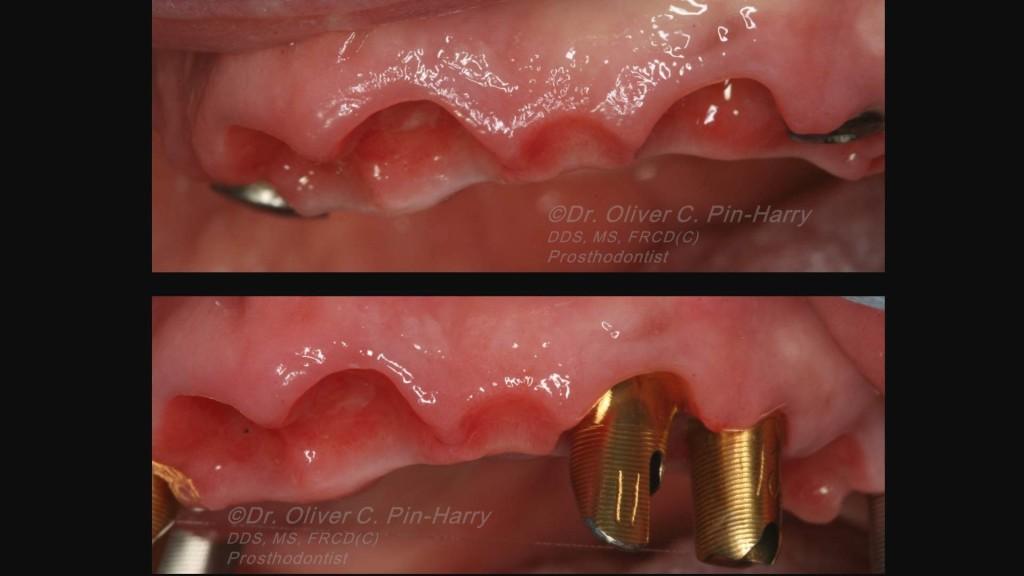 peri-implant-soft-tissue